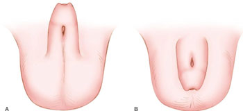 Hipospadias (Peygamber Sünnetli)