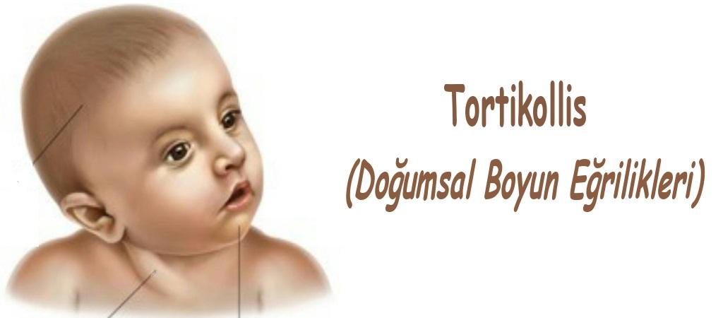 Tortikollis